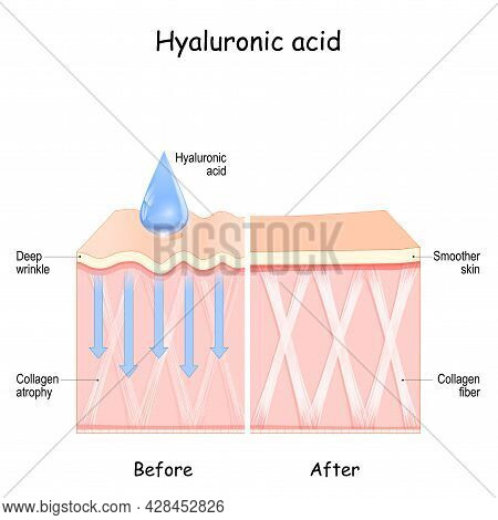 Hyaluronic Acid. Skin Before And After Hyaluronic Acid Use. Comparison And Difference Between Skin W