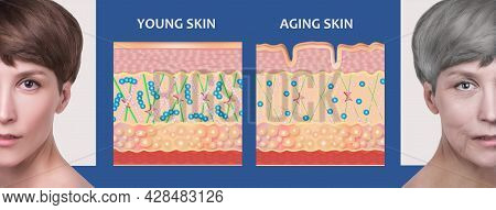 Anti-aging, Beauty Treatment, Aging And Youth, Lifting, Skincare, Plastic Surgery Concept.