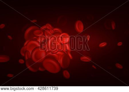 Blood Clots, Thrombus Or Embolus With Coagulated Erythrocytes, Platelets In The Blood Vessels Of The