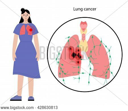Lung Cancer Stage. Respiratory System Disease In Woman Silhouette. Tumor, Inflammation And Metastasi