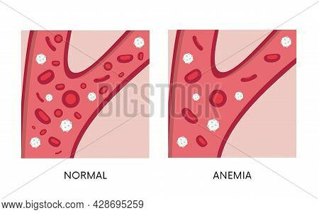 Normal And Anemia Amount Of Red Blood Cells In Blood Flat Illustration. Iron Deficiency Anemia. Decr