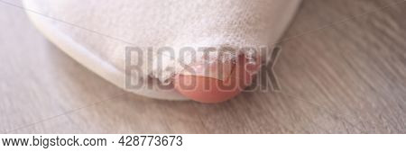 Big Toe Of Man Foot Is Sticking Out Of Torn Sneaker