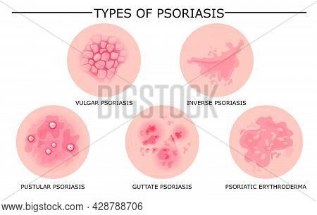Different Types Of Psoriasis Vector Set. Part Of Patients Skin With Dermatitis, Inflammation, Red Ra