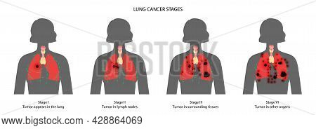 Lung Cancer Stages. Respiratory System Damage, Tumor, Swelling, Inflammation In Internal Organs And