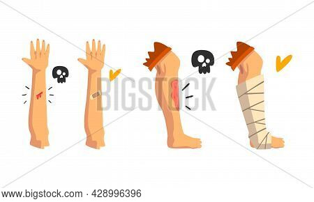 First Aid For Wounded Leg And Arm Vector Set