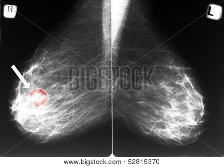Mammogram With Breast Cancer