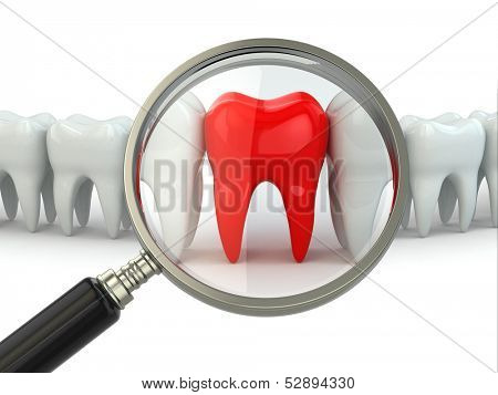 Search aching tooth in row of healthy teeth. 3d