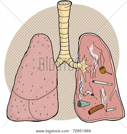 Tobacco Inside Lungs