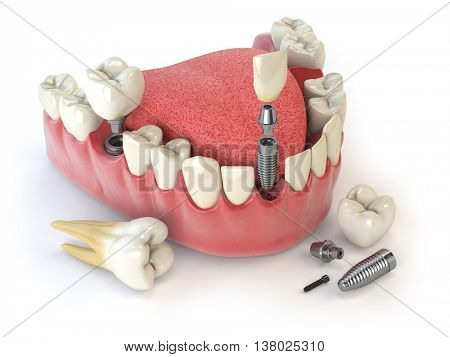 Tooth human implant. Dental concept. Human teeth or dentures. 3d illustration