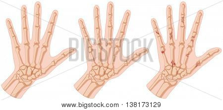 Human hands with bone fracture illustration