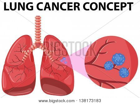 Diagram of lung cancer concept illustration