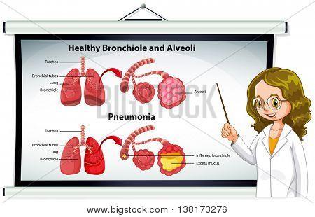 Doctor explaining healthy bronchiole and alveoli illustration