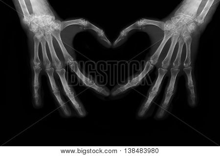 Bones of hands making the sign of love