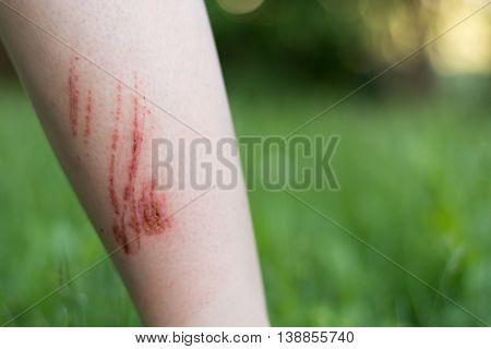 Person has infected injuries on the forearm