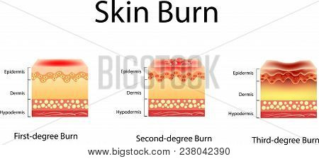 skin burn. Three degrees of burns. type of injury to skin, Vector illustration, isolated poster
