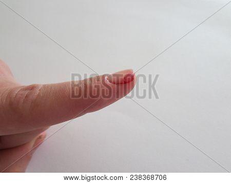 Cut Finger. Bleeding From The Cut Finger. Cut Fingertip With Blood. Cut Injury Finger.