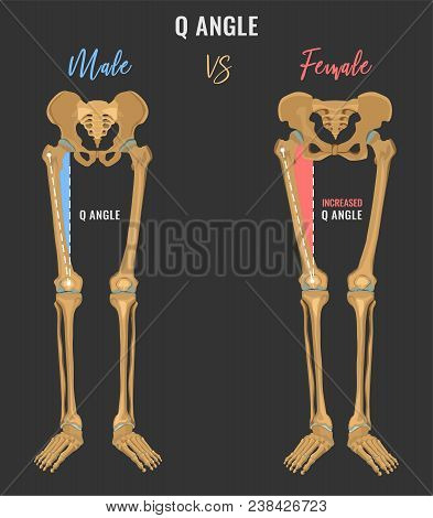 Female And Male Skeleton Differences Poster. Q Angle In Comparison. Major Gender Nuances. Vector Ill
