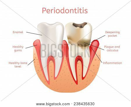 Periodontitis, Inflammation Of Gums 3d Realistic Vector Illustration Of Tooth Periodontal Dental Los