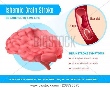 Ischemic Brain Stroke Realistic Poster With Symptoms List And Call To Be Careful To Save Life Vector