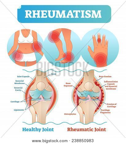 Rheumatism Medical Health Care Vector Illustration Poster Diagram With Damaged Knee Erosion And Pain