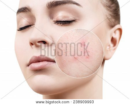 Zoom Circle Shows Skin With Acne. Young Woman Before And After Treatment.