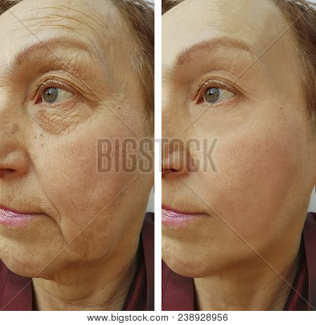 Face Woman Wrinkles Before And After Results, Patient, Therapy, Surgeon