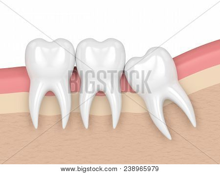 3D Render Of Teeth With Wisdom Mesial Impaction