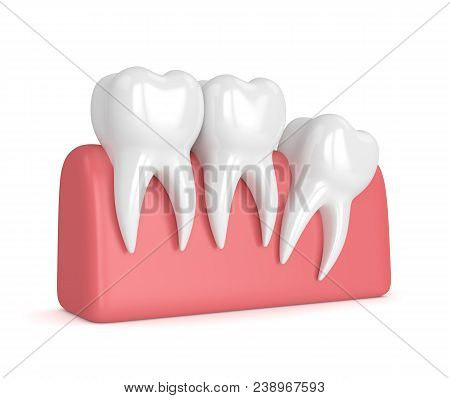 3d Render Of Teeth With Wisdom Distal Impaction Over White Background. Concept Of Different Types Of