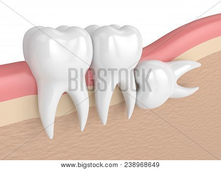 3D Render Of Teeth With Wisdom Horizontal Impaction