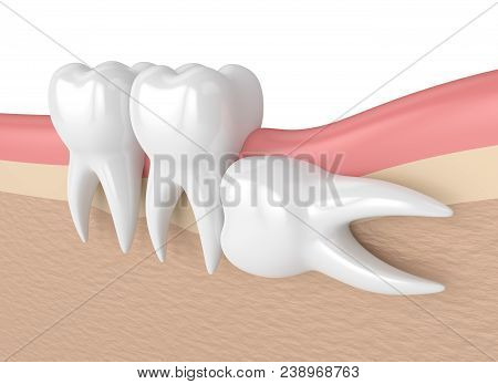 3d Render Of Teeth With Wisdom Horizontal Impaction. Concept Of Different Types Of Wisdom Teeth Impa