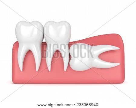 3d Render Of Teeth With Wisdom Horizontal Impaction Over White Background. Concept Of Different Type
