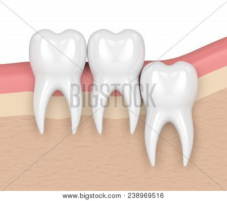 3D Render Of Teeth With Wisdom Vertical Impaction