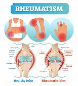 Rheumatism medical health care vector illustration poster diagram with damaged knee erosion and painful body joints. Healthy knee joint comparison to rheumatic one. Anatomical scheme. poster