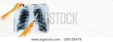 Radiology Department. Doctor Girl Holding X-ray Of Lungs. Medical Student Woman Holding X-ray. A Fem