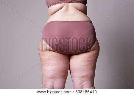 Overweight Woman With Fat Legs And Buttocks, Obesity Female Body
