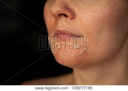 Womans Face After Chemical Peeling. Peeling Skin On The Face. Exfoliation Of Old Skin. Facial Rejuve