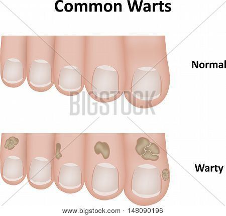 Common warts with comparison to normal toes