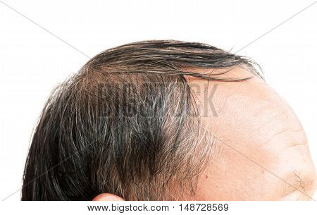 Closeup old man serious hair loss and grey hair problem with white background hair loss concept