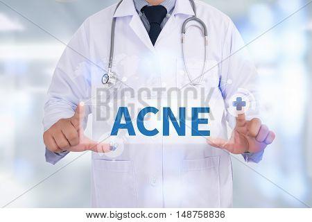 ACNE Medicine doctor hand working doctor work hard