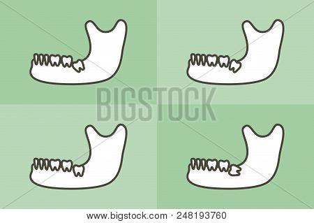 Set Of Type Of Wisdom Tooth In Mandible Or Lower Jaw - Dental Cartoon Vector Flat Style Cute Charact