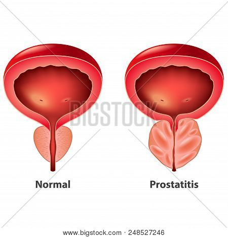 Prostatitis Normal And Inflamed Prostate Isolated Vector Photo-realistic Illustration