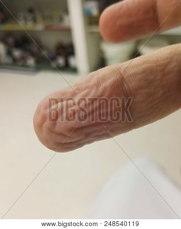Anatomy Of The Body: Finger Of A Human Hand Wrinkled By Water - Wet Finger, Wrinkly Finger - With Fi
