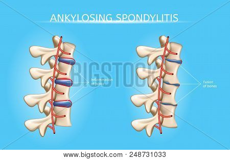 Ankylosing Spondylitis Realistic Vector Medical Chart With Human Vertebral Column Joints Inflammatio