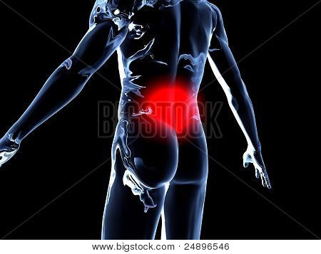 Medical Illustration. 3D rendered Illustration. Back Ache - Anatomy. poster