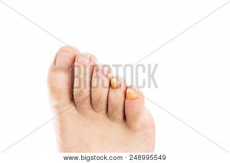 Yellow male fingernail with fungus as fungal disease of toenails or foot nail toes poster