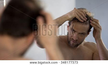 Middle-aged Man Looking In Mirror At His Bald Patches, Hair Loss Problem