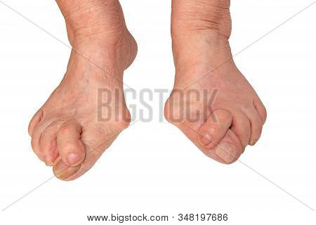 Medecin, Valgus Bunion, Leg With Deformation Valgus Hallux (bunion), Consequence Of Failure Of Treat