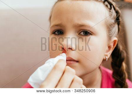 Mom Holding Napkin Near Daughter With Nasal Bleeding