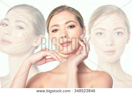 Collage Portrait Of A Young Beautiful Woman With Drawn Massage Lines On Her Face. Skin Lifting Conce