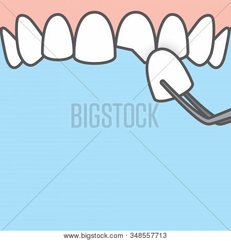 Blank Banner Upper Veneer Tooth Illustration Vector On Blue Background. Dental Concept.